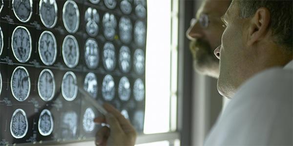 Диагностика неврологических заболеваний