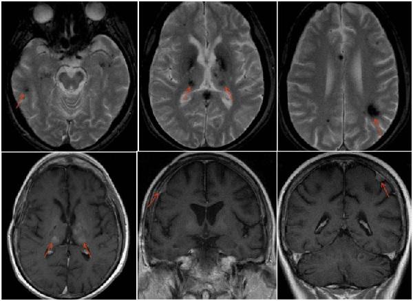 МРТ при герминоме мозга