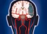 Нарушение мозгового кровотока