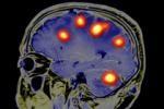 Симптомы опухолей мозга