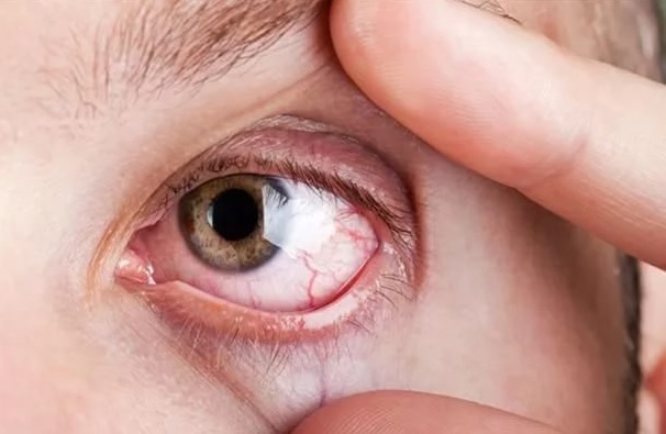 Лечение, если сильно давит на глаза