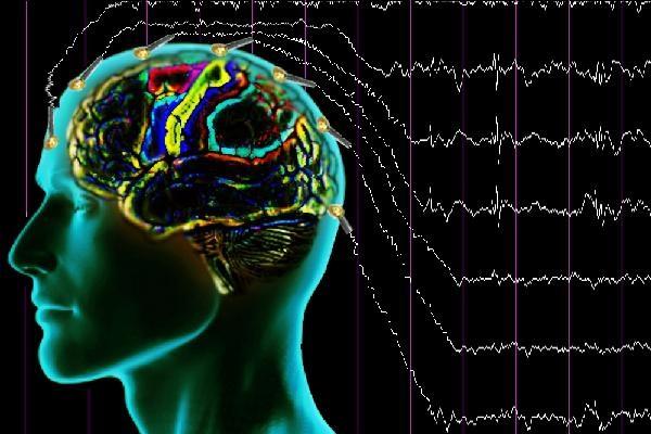 Диффузные нарушения БЭА головного мозга