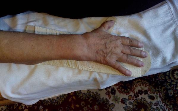 Паралич левой стороны после инсульта