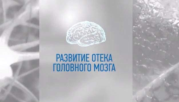 Отек мозга при инсульте
