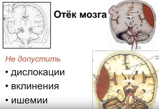 Последствия отека мозга