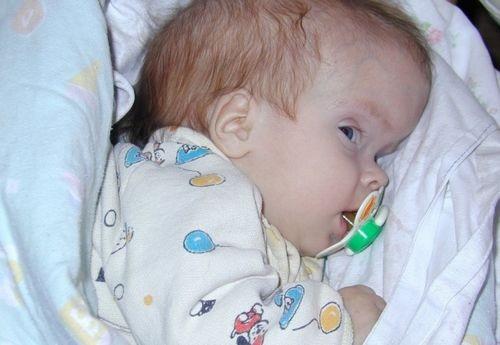 Причина выпуклого лба у ребенка