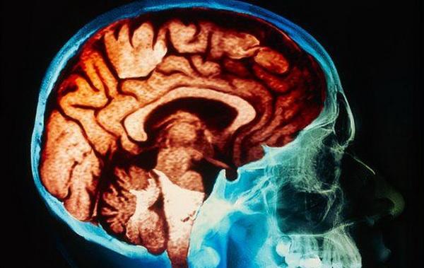 Ирритация коры головного мозга