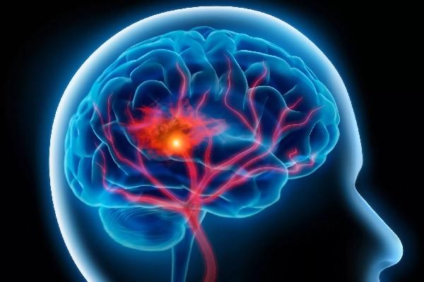 Инсульт кровоизлияние в мозг