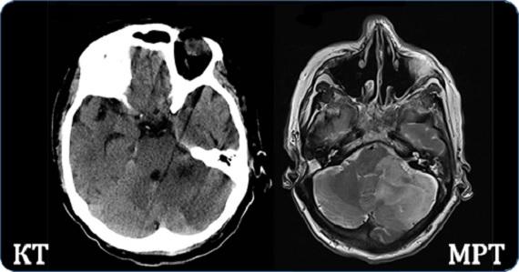 Разница между КТ и МРТ