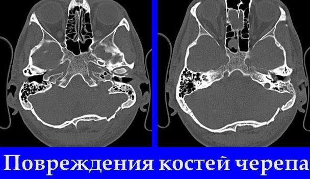 Степень поражения при переломе затылочной кости