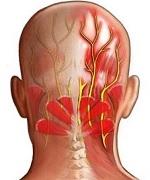 Воспаление затылочного нерва