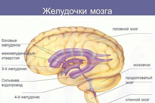 Дилатация боковых желудочков головного мозга