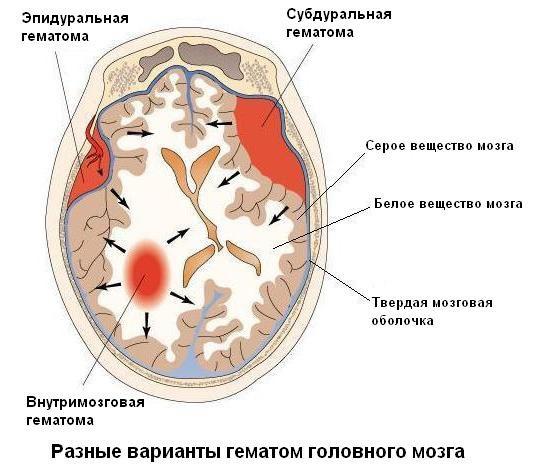 Лечение гематомы на голове после ушиба