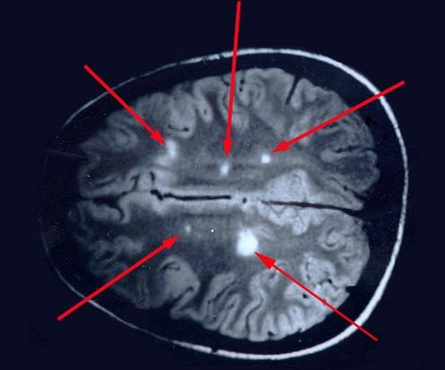 Делают МРТ головного мозга