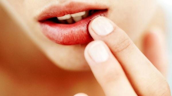 Причиной онемения верхней, нижней губы, подбородка, языка