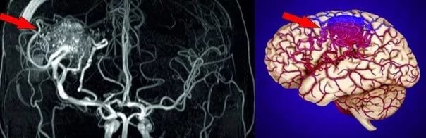 К органическим изменениям мозга