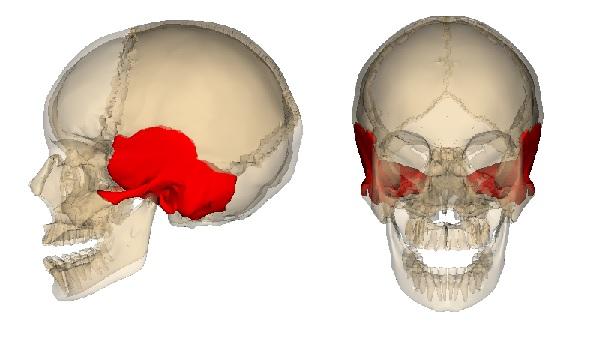 Перелом височной кости у ребёнка