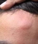 Твердая шишка на голове