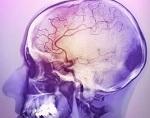 Симптомы ишемической болезни