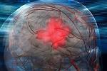 Как уменьшить вероятность инсульта