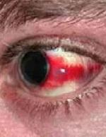 Красные пятна на глазах