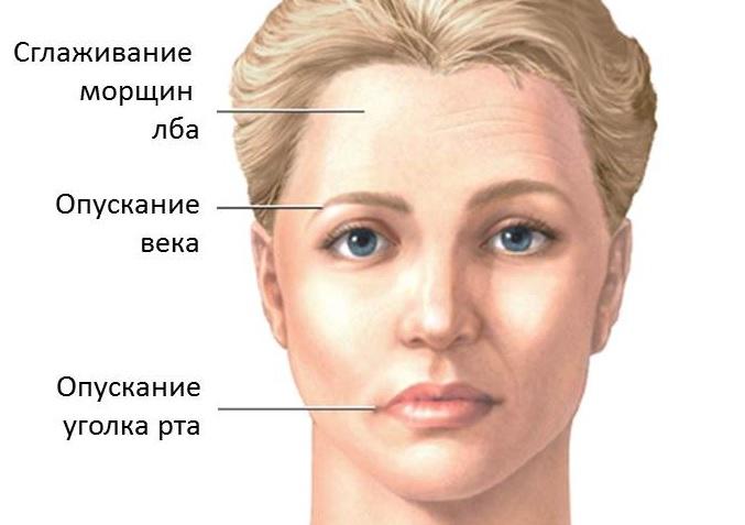 Симптомы паралича Белла