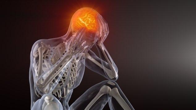 Головные, суставные боли при рассеянном склерозе