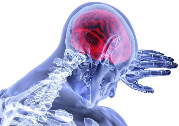 Сотрясение головного мозга легкой степени