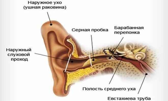 При закупорке слухового прохода серной пробкой