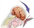Симптомы сотрясения мозга