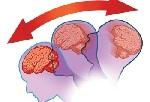 Симптомы при сотрясении мозга