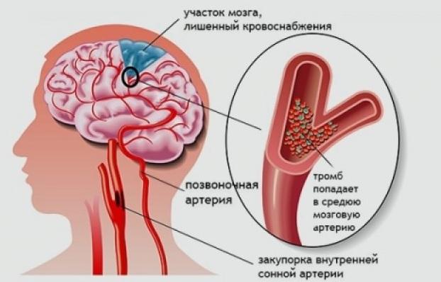 Хроническая ишемия головного мозга