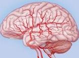 Средства от спазмов сосудов головного мозга