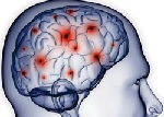 Осложнения сотрясения головного мозга