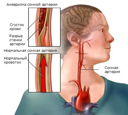 При аневризме сонной артерии