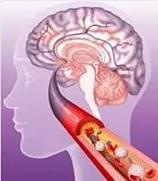 Ишемический микроинсульт