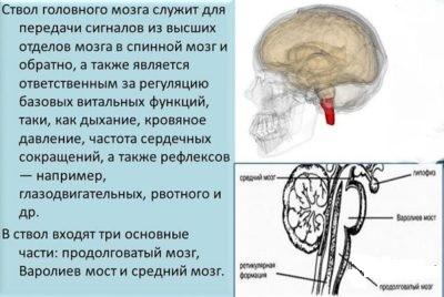 Нарушение целостности стволового отдела мозга