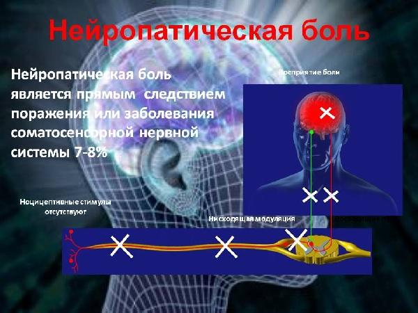 При нейропатической боли