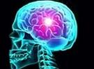 ВИЧ энцефалопатия