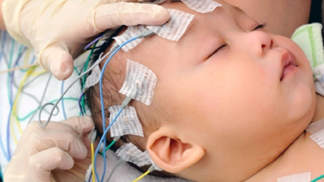 Лейкоэнцефалопатии у детей
