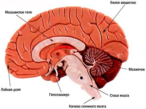 Инсульт стволовой части мозга
