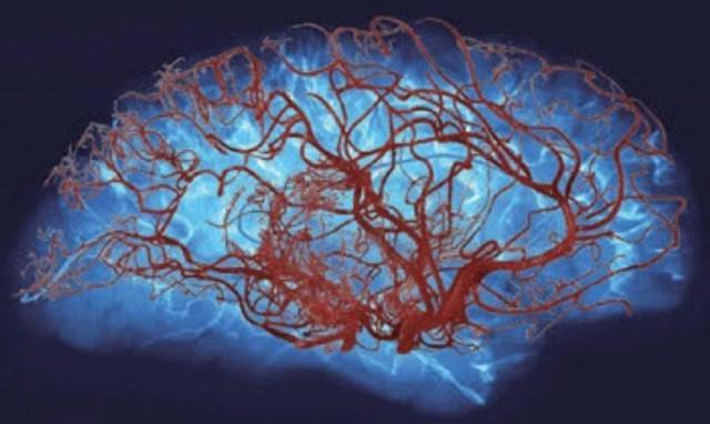 Микроангиопатия головного мозга