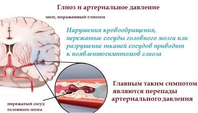 Микроангиопатия головного мозга с наличием очагов гиалиноза