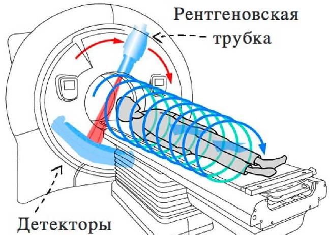 При многослойной спиральной компьютерной томографии