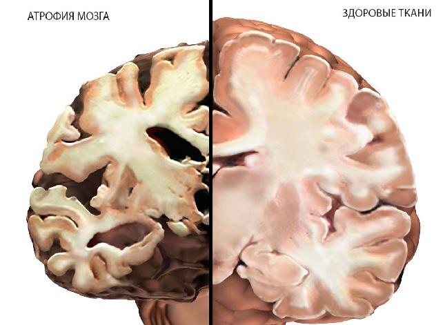 Кортикальная атрофия головного мозга