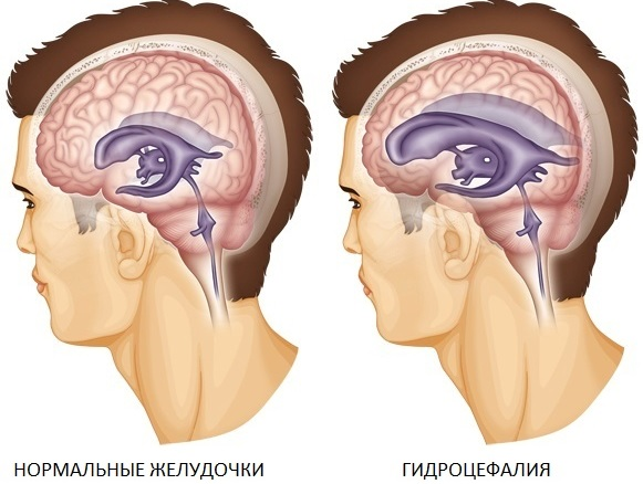 Умеренно выраженная наружная гидроцефалия