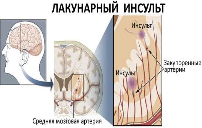 Признаки лакунарного инсульта головного мозга