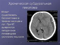 Хроническая субдуральная гематома