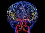 Допплерография сосудов головы