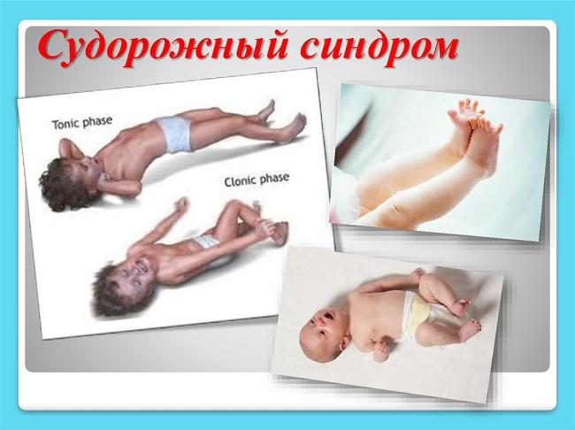 Судорожный синдром у детей
